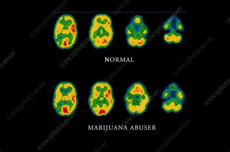 Cannabis brain scans - Stock Image M371/0044 - Science
