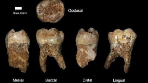 Earliest Evidence of Man-Made Pollution Found in Tartar on